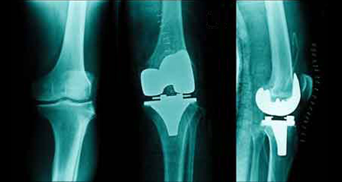 xrays showing a complete knee replacement before and after from both the front view and side view